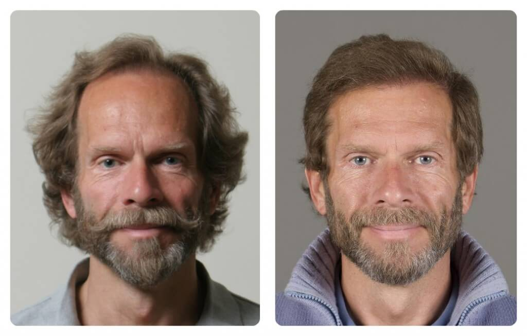 Results of FUE Hair Transplant at My Hair Clinic in Islamabad, Pakistan. Danish famous artist Mikael Melbye