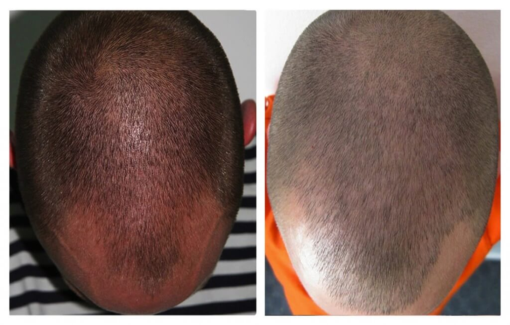 FUE hair transplant at My Hair Clinic in Islamabad. Also clinics in Oslo (Norway) and central London (United Kingdom)