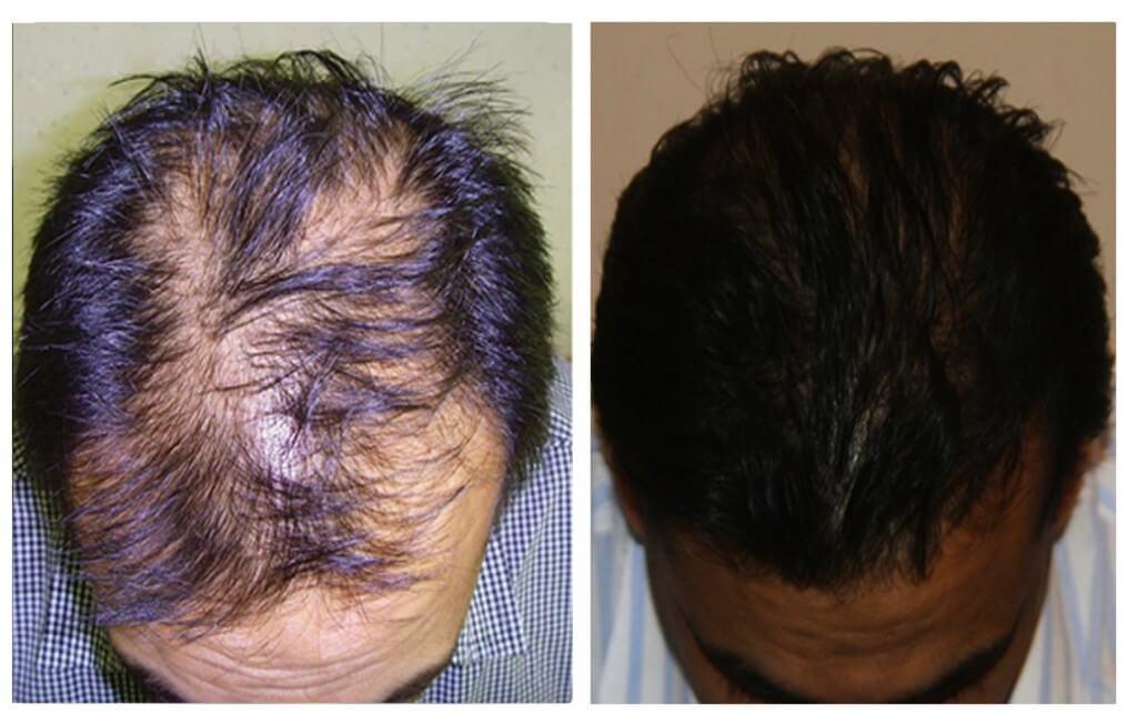 Results after FUE Mega Hair hair transplantation at My Hair Clinic at Islamabad, Pakistan.