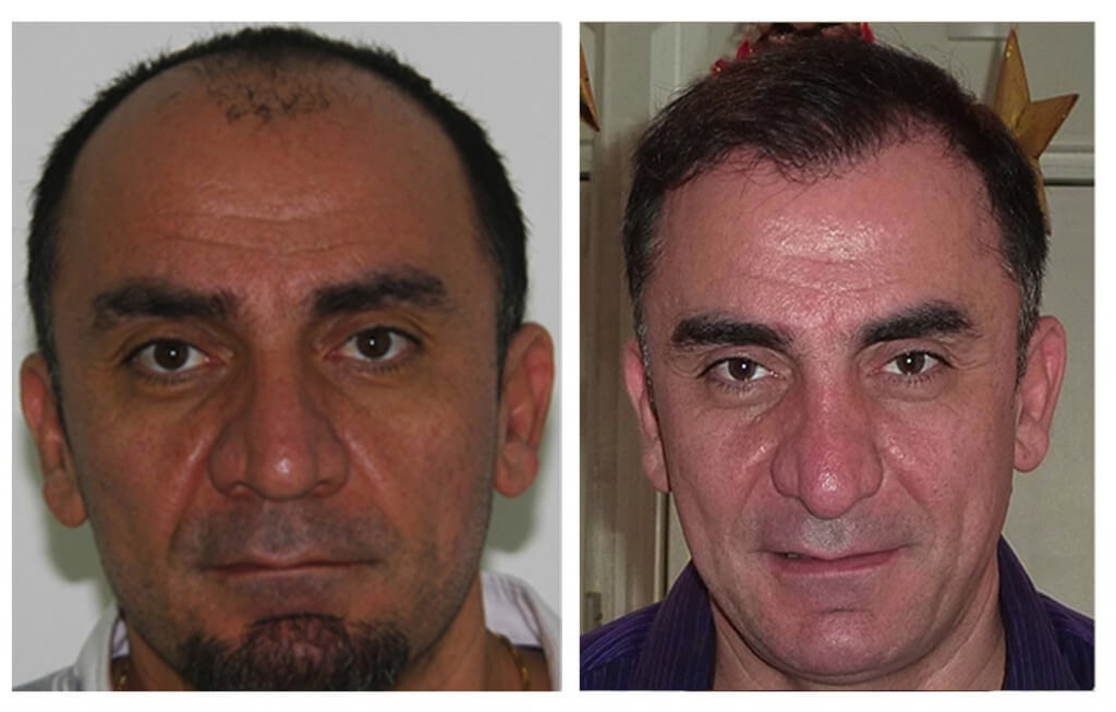 Hair Transplant my hair clinic extra ordinary result 2 in pakistan