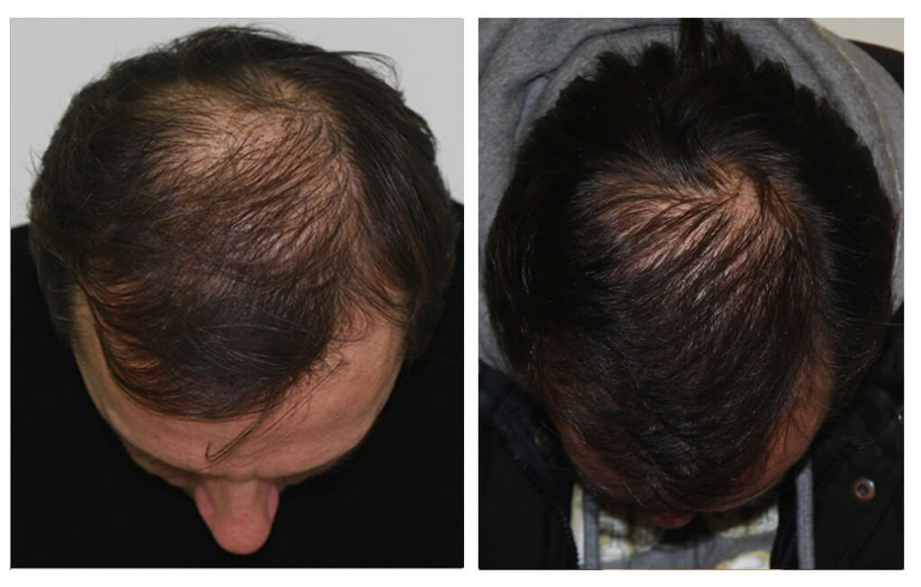 Hair Transplant my hair clinic extra ordinary result 1 in pakistan