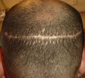 stripsurgery_scar-300x275