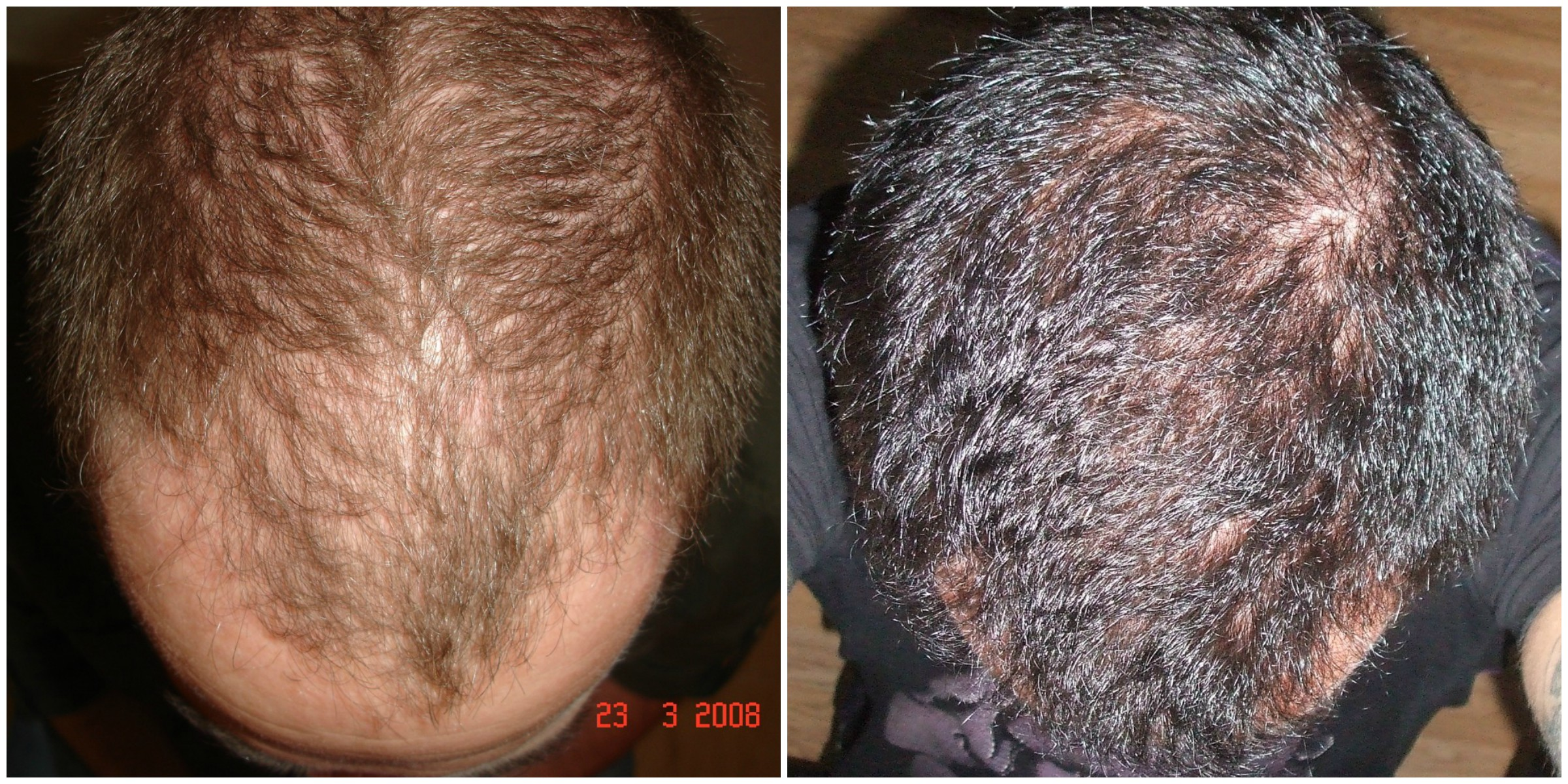 Results after FUE