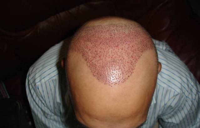 fue hair transplant pakistan